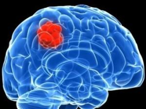 преобразовали злокачественную опухоль в доброкачественную