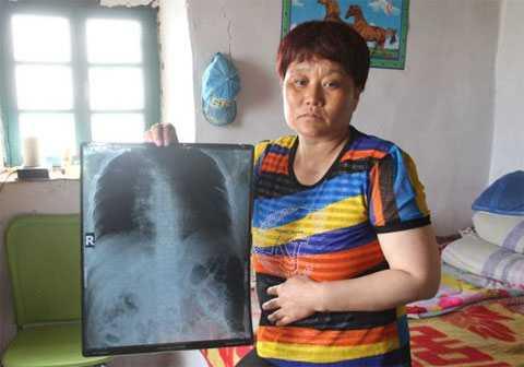 Гимнастика при грудном остеохондрозе симптомы и лечение