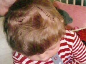 Врачи разобрали и снова собрали череп маленькой девочки