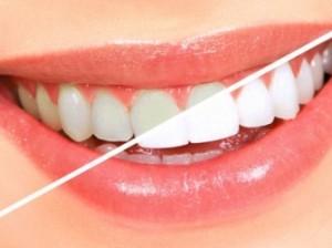 Вредно ли отбеливание зубов?