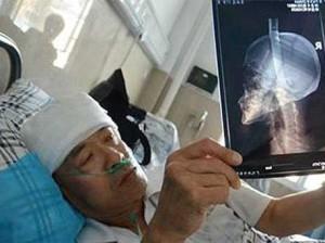 Проходивший под многоэтажкой китаец словил головой нож