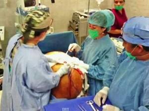 Хирурги удалили самую крупную в истории опухоль