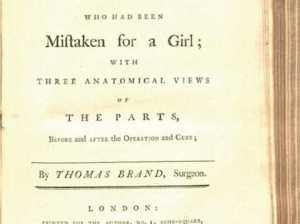 Брошюра 18 века рассказала о первой в мире операции по смене пола