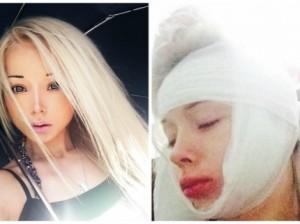"""Украинскую """"Барби"""" избили и ограбили на улице в Одессе"""